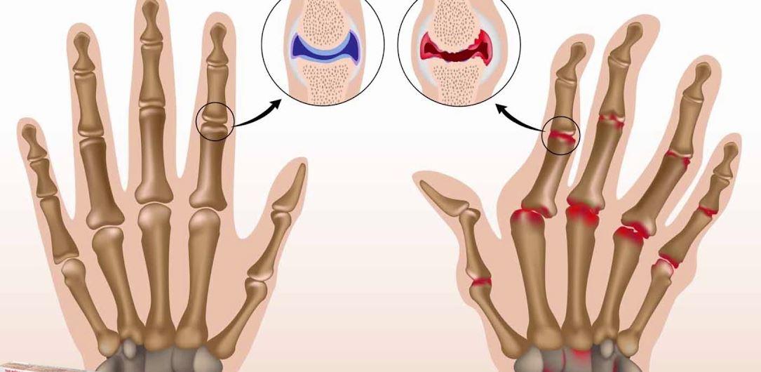 Phương pháp điều trị và chế độ sinh hoạt dành cho người bị viêm khớp dạng thấp