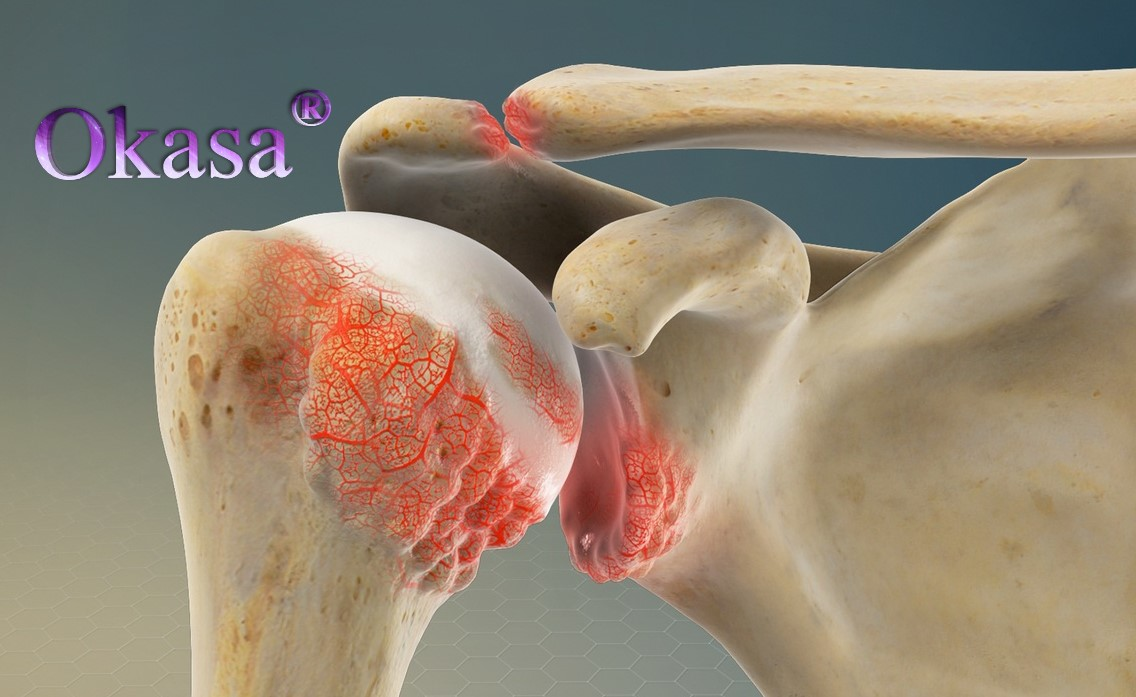 Biến chứng nguy hiểm từ viêm quanh khớp vai thể đông