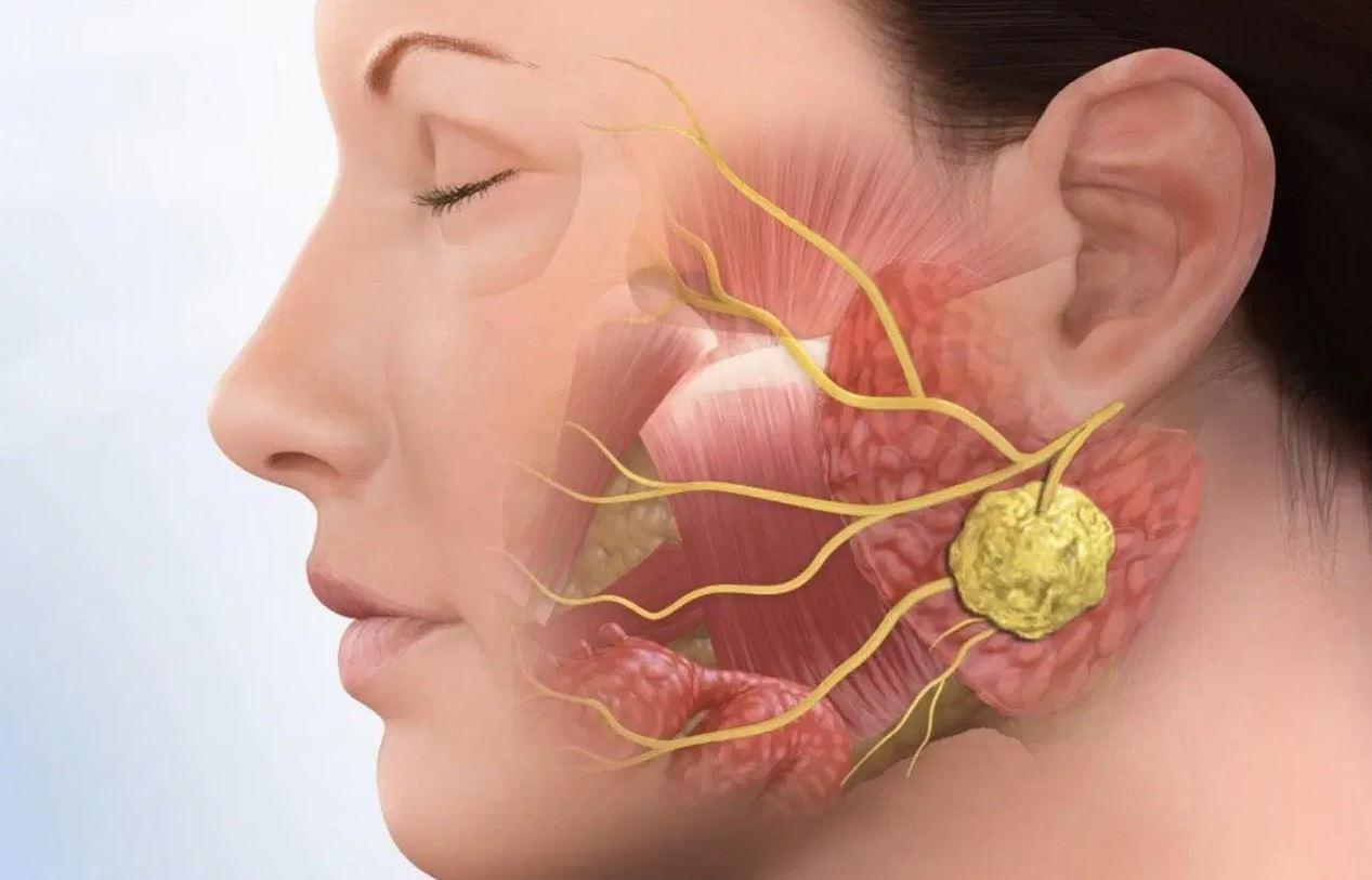 Bệnh viêm khớp thái dương hàm